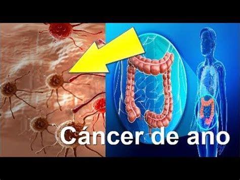 Pin en cancer