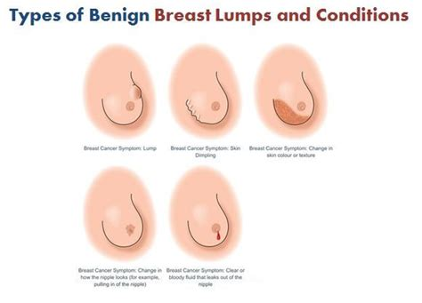 Pin on Breast Cancer Surgery in Dubai
