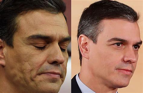 Pinchazo presidencial: los retoques secretos de Pedro ...