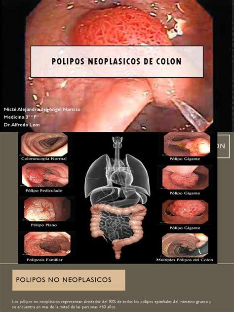 Polipos Neoplasicos de Colon | Colorectal Cancer | Anatomy