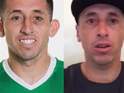 ¿Por qué Héctor Herrera se operó nariz y orejas? Así se ve ...