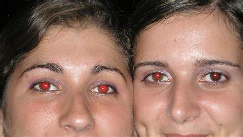 Por qué los ojos rojos en las fotografías   Kebuena