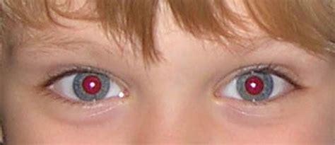 ¿Por qué salen los ojos rojos en algunas fotografías ...
