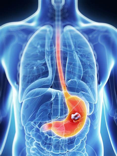 ¿Por qué se produce el cáncer de estómago y cuáles son sus ...