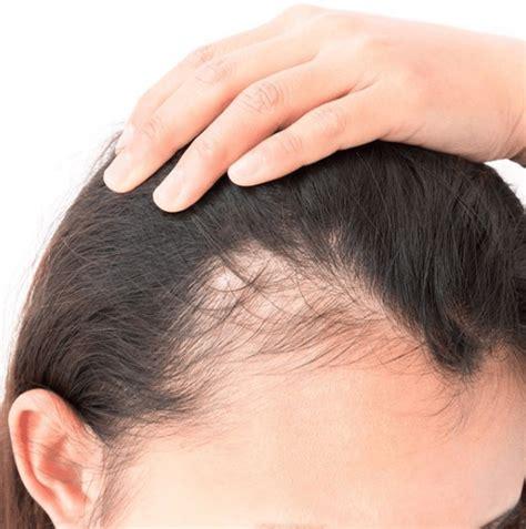 ¿Por qué sufro la caída del pelo? Síntomas, causas ...