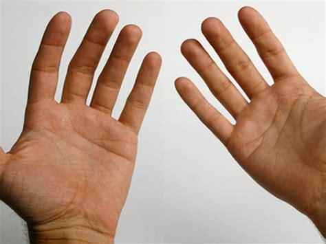 ¿Por qué tenemos lineas en las manos? ️ » Respuestas.tips