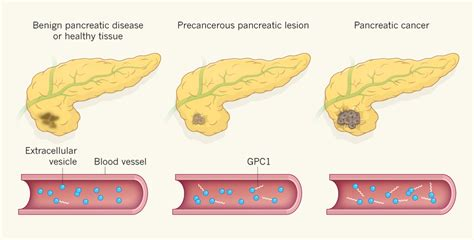 Possible Diagnostic Marker for Pancreatic Cancer ...