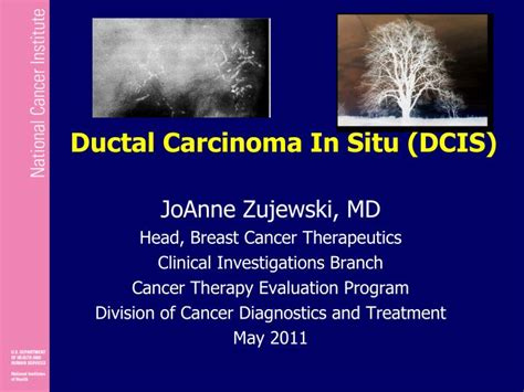 PPT   Ductal Carcinoma In Situ  DCIS  PowerPoint ...