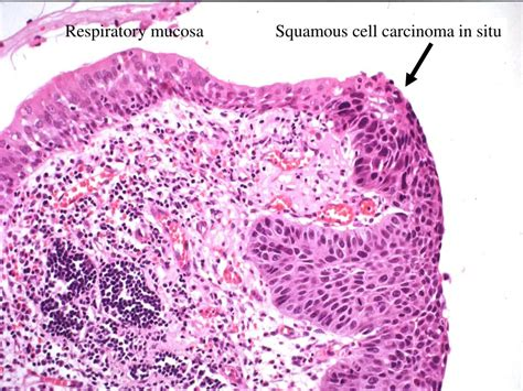 PPT   Neoplasms of Lung and Pleura PowerPoint Presentation ...