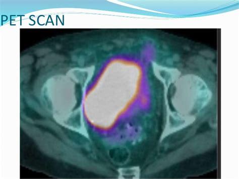 Pre management of carcinoma urinary bladder