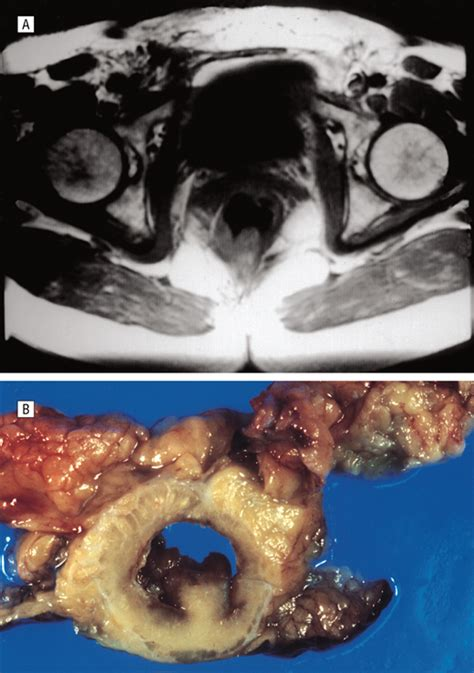 Preoperative Staging of Rectal Cancer Using Magnetic ...