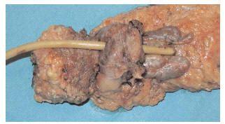 Preservación de la vejiga en el cáncer de recto con ...