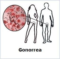 Prevencion De La Gonorrea Dibujos | Gonorrea