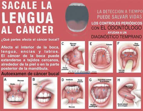Prevenir el cáncer bucal   Jujuy Al Momento