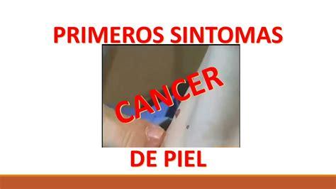 PRIMEROS SINTOMAS DE UN CANCER DE PIEL   YouTube