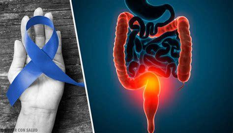 Principales causas del cáncer de colon — Mejor con Salud