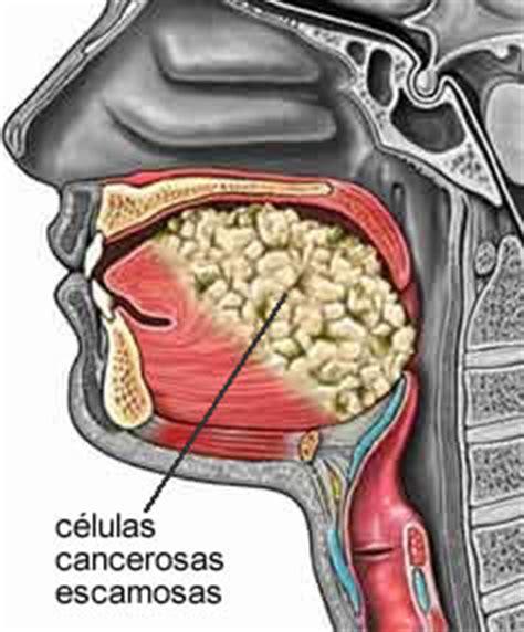 Principales enfermedades del aparato digestivo: diciembre 2012
