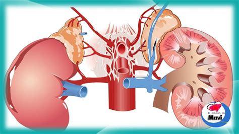 Principales sintomas de la enfermedad renal que debes ...