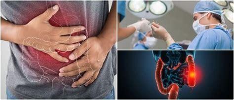 Proctitis Ulcerosa: ¿Qué es? Causas, Síntomas, Diagnóstico ...