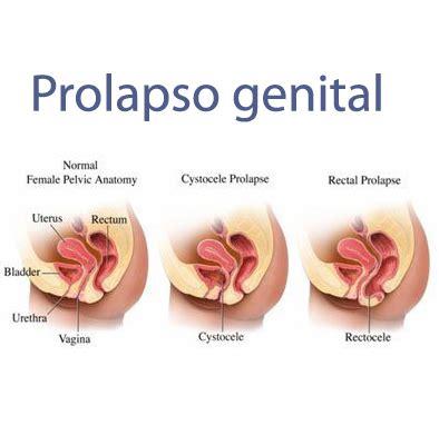 prolapse internal pelvic organs   SUMSA