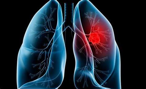 Prolonga nuevo tratamiento vida de pacientes con cáncer ...