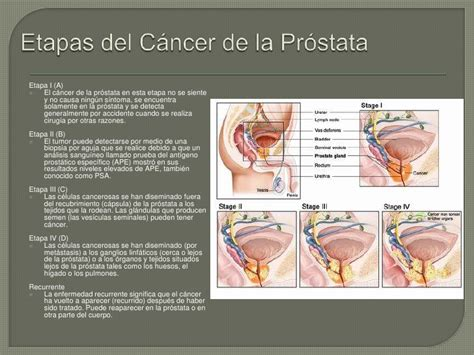 Prostata actualizacion 2012