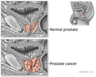 Prostate Cancer | SexInfo Online