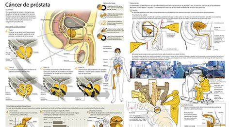 Prostatectomía o Extirpación de la Glándula Prostática ...
