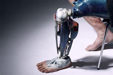 Prótesis y Avances Tecnológicos: Prótesis y Avances ...