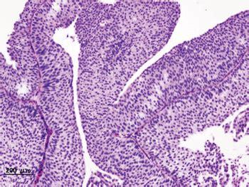 Prueba en orina detecta cáncer de vejiga   Química Clínica ...