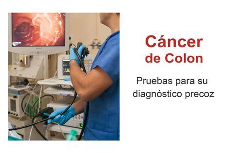Pruebas cáncer de colon   Colonoscopia   Detección a tiempo