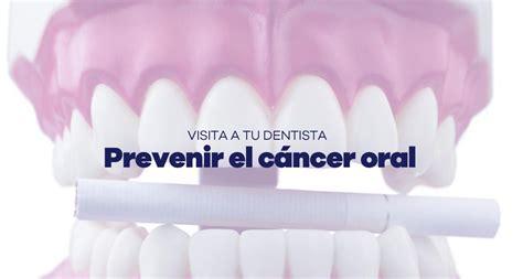 Puedes prevenir el cáncer oral. Dentista en Jaén Cleardent