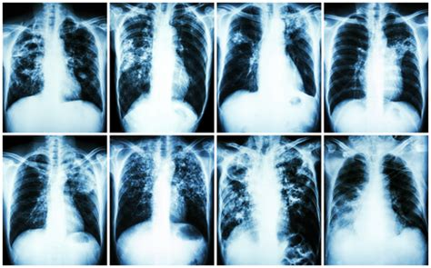 Pulmonary Fibrosis Trial Shows Ofev Slows Lung Scarring