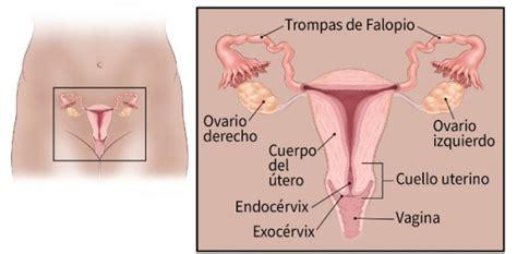 ¿Qué es cáncer de cuello uterino  cervical ?