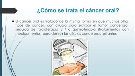 ¿Que es cáncer oral?
