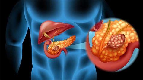 ¿Qué es el cáncer de páncreas? | Síntomas, causas y cómo ...