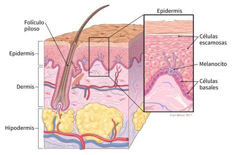 ¿Qué es el cáncer de piel tipo melanoma?