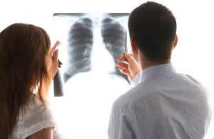 ¿Qué es el cáncer de pulmón y cuántos tipos de este cáncer ...