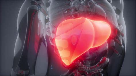 Qué es el cáncer de riñón en etapa 4   YouTube