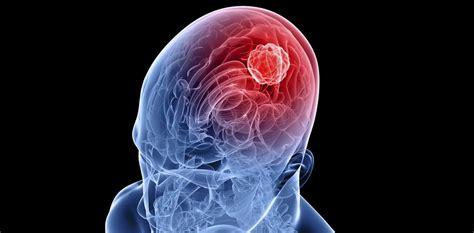 Qué es el glioblastoma: síntomas, tratamiento, esperanza ...