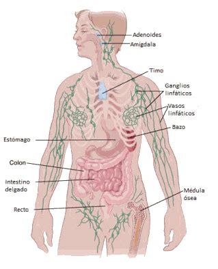 ¿Qué es el linfedema vinculado con el cáncer?