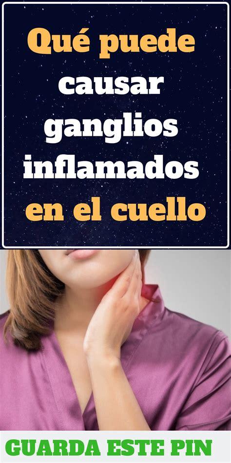 Qué puede causar ganglios inflamados en el cuello ...