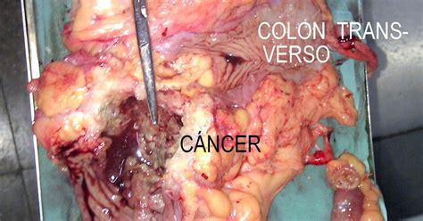 Que vi hoy: Cáncer de colon ascendente