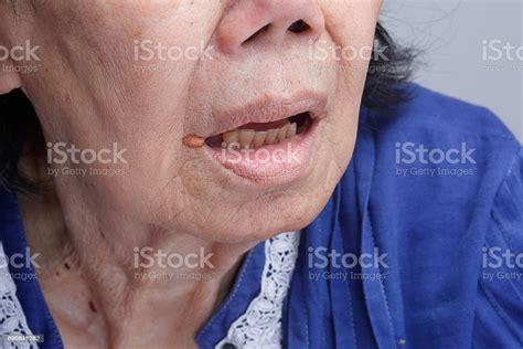 Queilitis Angular Inflamación De Los Labios Foto de stock ...