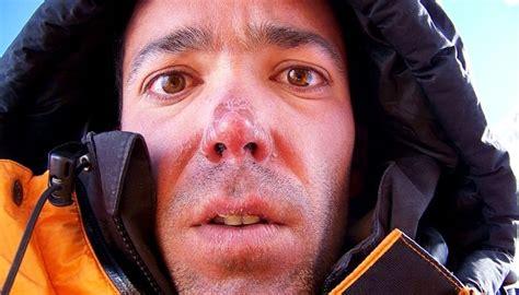 Quemadura Por Frío:Como Curarla Con 6 Tratamientos Caseros ...