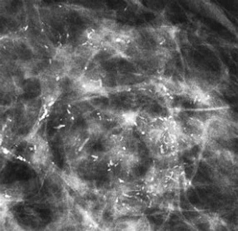 Radiación más quimioterapia para el linfoma nasal de ...
