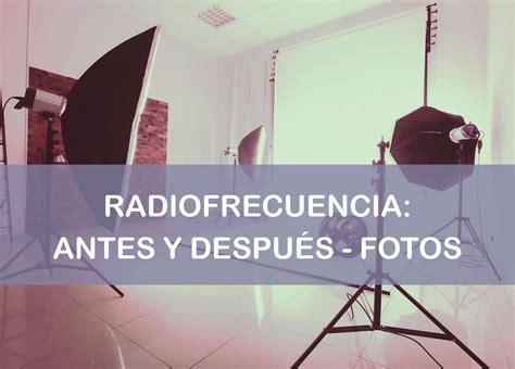 Radiofrecuencia Antes y Después    ¡¡¡Todas Las Fotos!!!
