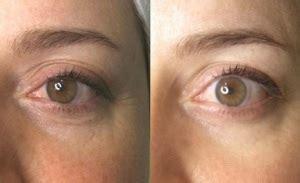 Radiofrecuencia Facial    Antes y Después  con FOTOS