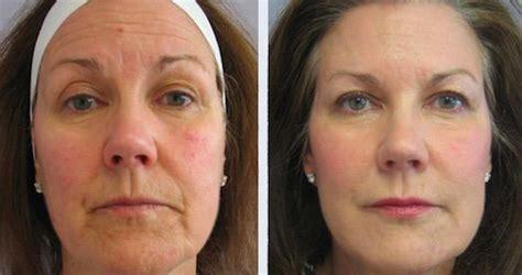 Radiofrecuencia Facial >> Antes y Después, Precio ...