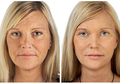 Radiofrecuencia Facial   Beneficios, Contraindicaciones y...